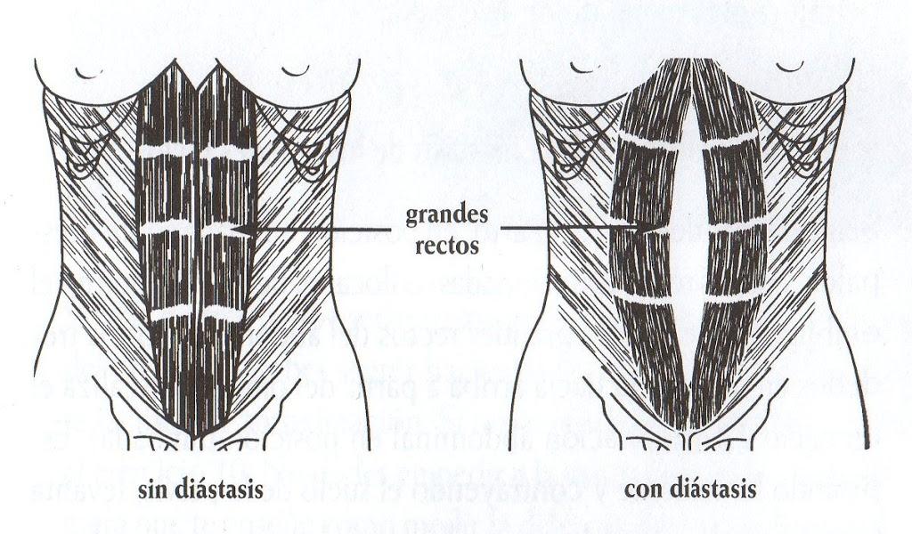 gráfico antes y despues diástasis abdominal