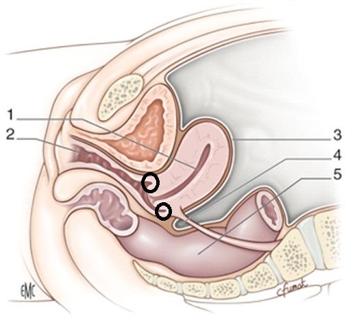 el pene llega al utero